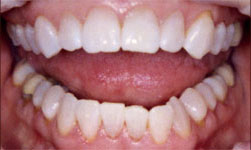 Teeth cleaning in Carrollton, TX