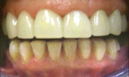 Tooth restoration from Carrollton dentist, Dr. Capua