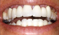 Dental implants from Dr. Kimberley Capua in Lewisville