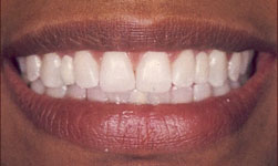 Dental bridges in Carrollton