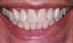 Teeth whitening in Carrollton