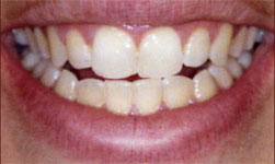Teeth whitening in Lewisville