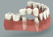 dental bridges carrollton tx