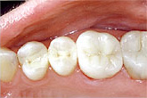 teeth-fillings-carrollton-tx