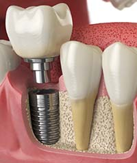 Parts of a dental implant in Carrollton