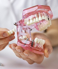 A dentist holding a mouth mold and an implant bridge in Carrollton